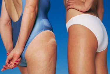 Cellulite-treatment-at-home