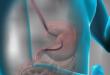Fibrogastroscopy