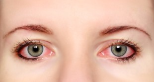 Inflammatory-diseases-of-the-eye
