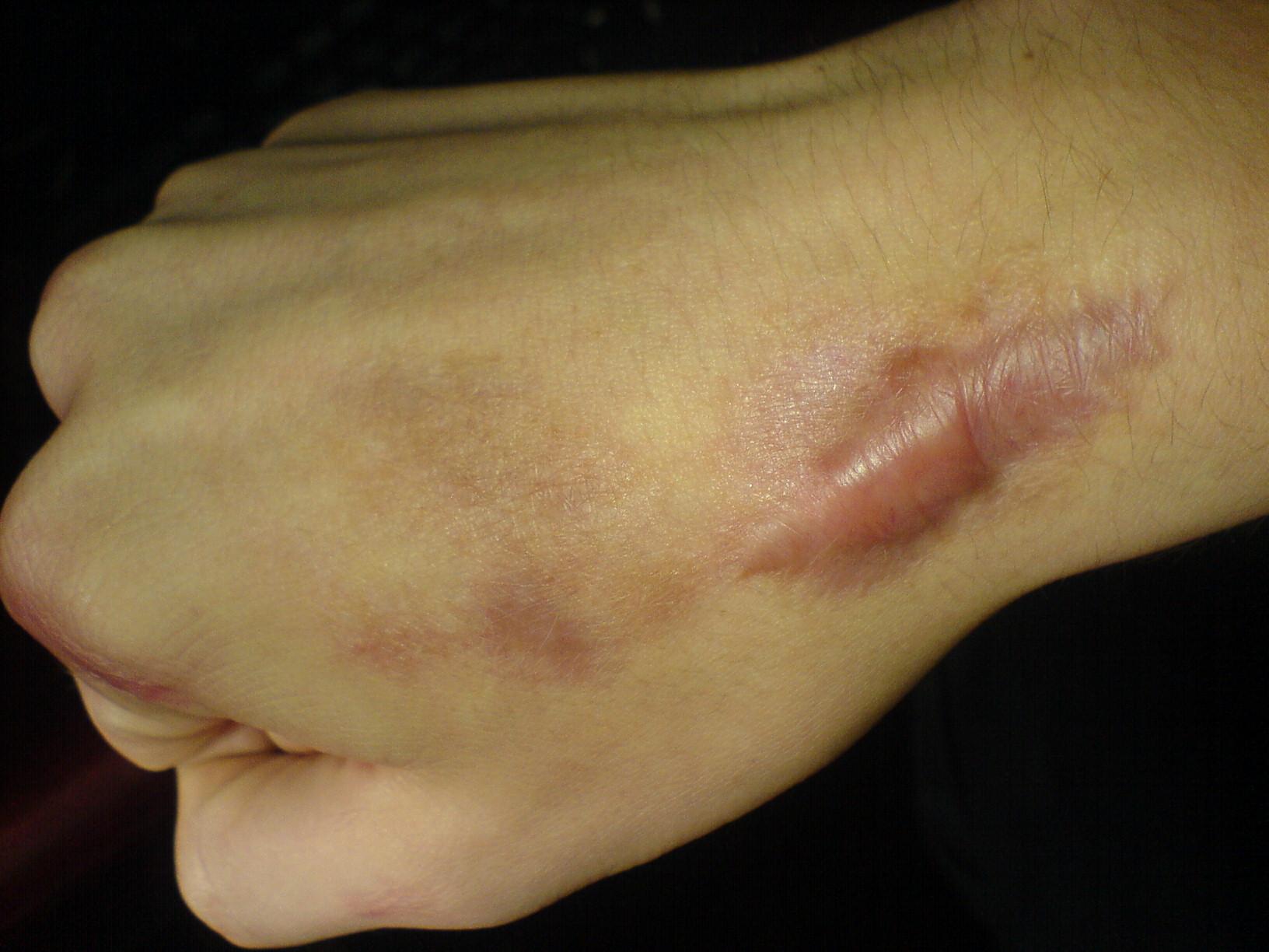 Удаление коллоидных рубцов