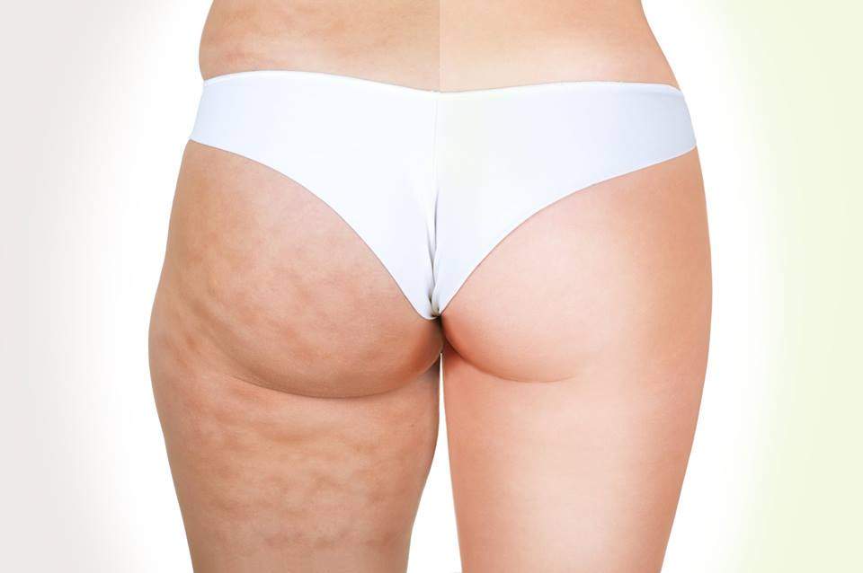 The-different-stages-of-cellulite