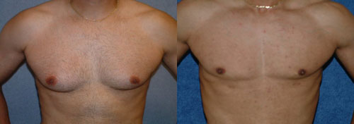 Treatment-of-male-gynecomastia
