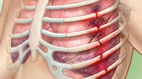 Ознаки перелому ребра