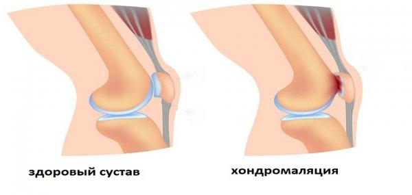 Размягчение хрящевой ткани коленного сустава - хондромаляция
