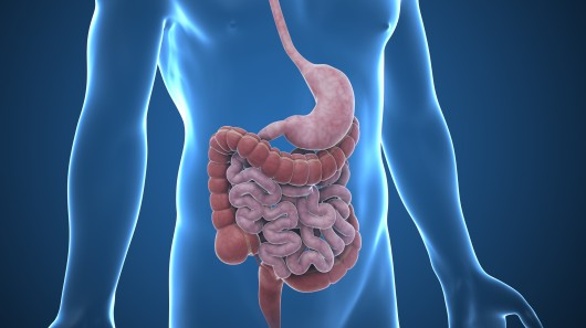 intestinal-obstruction