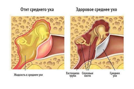 Лечение отита среднего уха