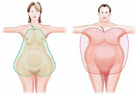 Ожирение у мужчин по женскому типу