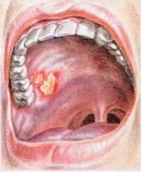 Протезный стоматит