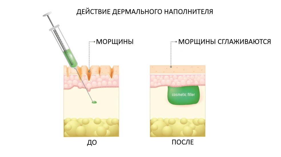 Как действует кожный наполнитель или dermal filler