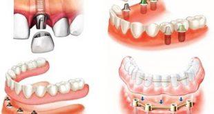 Возможные осложнения, возникающие после протезирования зубов